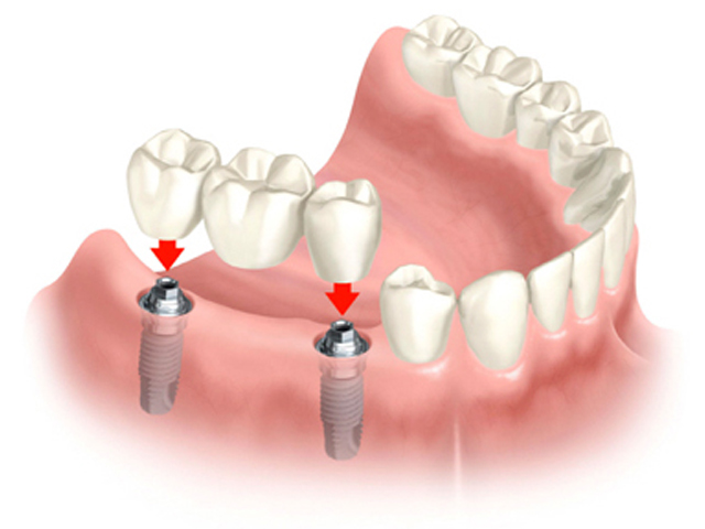 dental-bridge-on-implants