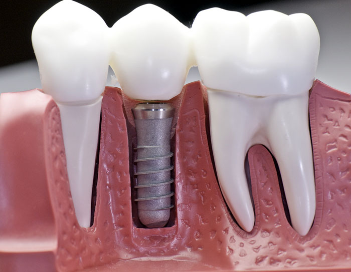 dental-implant-el-paso