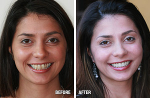 porcelain-veneers-before-after