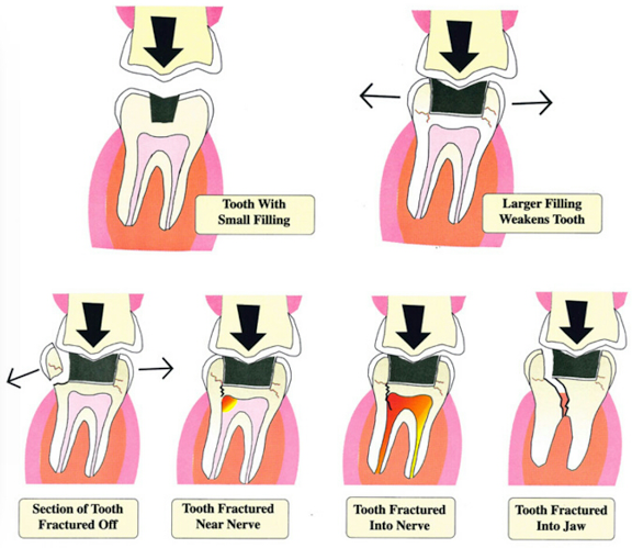avoiding-tooth-fracture