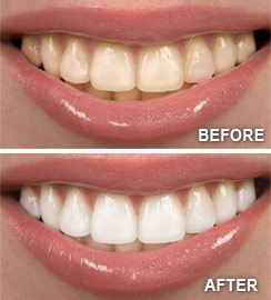 Image result for teeth before after